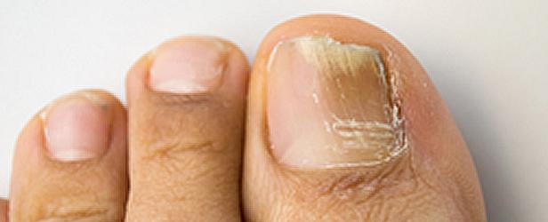 Die Tropfen von gribka der Beine