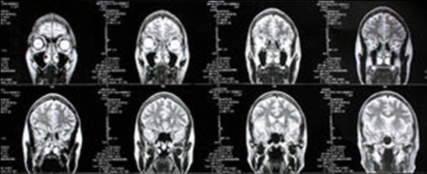 Schizophrenie: Symptome von Anatomie abhängig – News – wissen ...